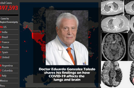 Dr Toledo shares his findings  on COVID19's effects on the brain and lungs